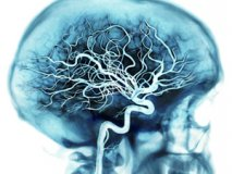 Как почистить сосуды головного мозга народными средствами