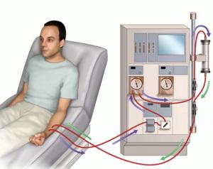 Гемодиализ - вывод токсинов из крови аппаратом искусственная почтка
