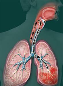 рисунок больного аспирационной пневмонией