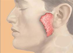 рисунок острого паратита на лице
