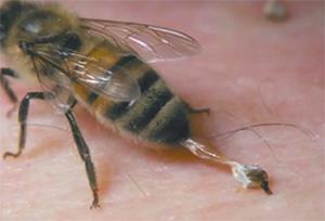 противопоказания к пчелиному яду