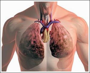 Токсикомания: последствия и вред для здоровья