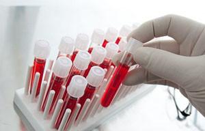 уровень гемоглобина