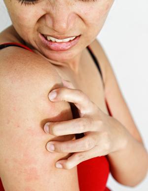 Аскорбиновая кислота передозировка симптомы