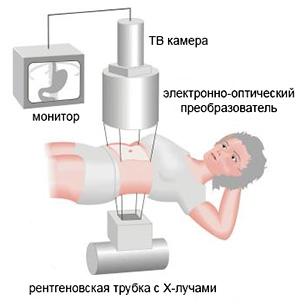 лечение солевым раствором насморка