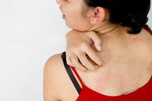 аллергическая реакция на раков