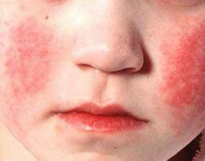симптомы при отравлении борной кислотой
