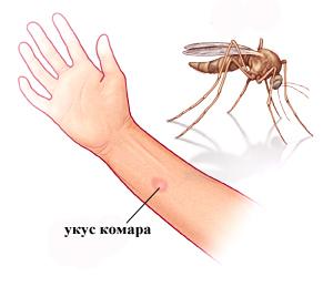 аллергия от укуса комара