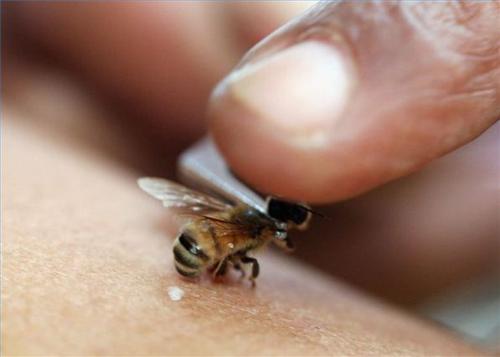 пчела оставляет жало при укусе