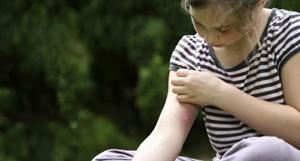 укусы комаров у детей фото