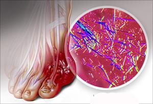 как вывести мочевую кислоту
