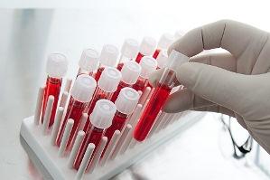 анализ крови для безопасности гирудотерапии