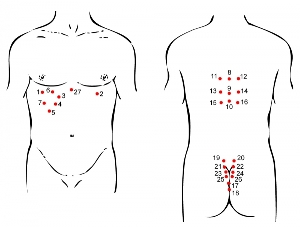 Схемы для гирудотерапии
