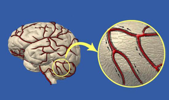 очищение сосудов головного мозга фото