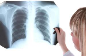 диагностика туберкулёзной интоксикации