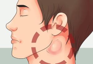 симптомы туберкулёзной интоксикации