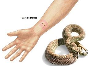 укус змеи фото