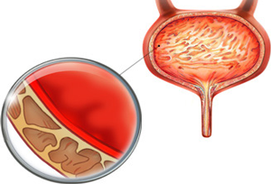 рисунок спазма мочевого пузыря