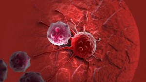 процесс развития рака