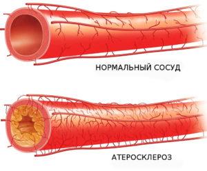 разница между нормальным сосудом и атеросклерозом