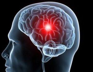 головной мозг человека с закупоренным сосудом