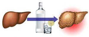 Интоксикация печени: симптомы и признаки, причины, лечение