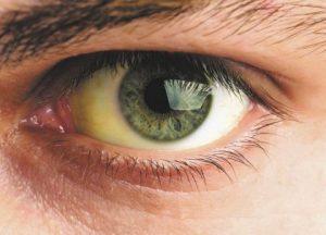 желтушность склер у человека