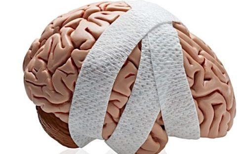 человеческий мозг в бинтах