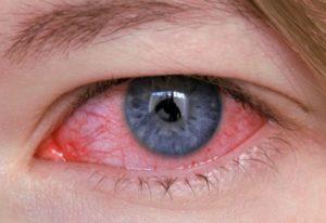 красные сосуды в роговице глаза