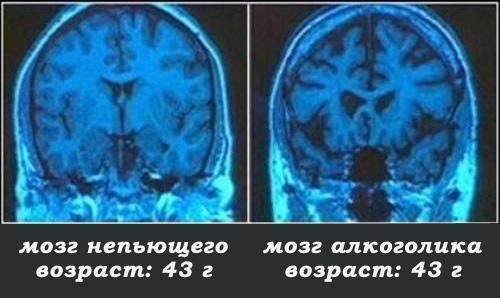 рентгеновские снимки мозга непьющего человека и алкоголика