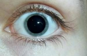 глаз человека с расширенным зрачком