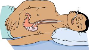 рисунок промывания желудка