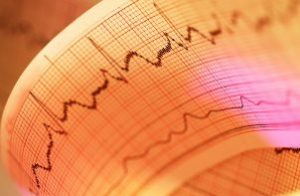 электрокардиограмма при тахикардии