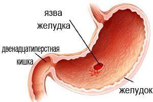 рисунок язвы желудка