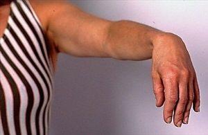 у женщины паралич кисти руки