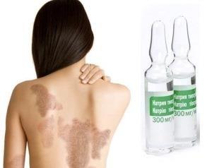 псориатические бляшки на коже и ампулы тиосульфат натрия