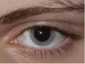 расширенный глазной зрачок