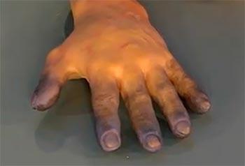 рука с потемневшими пальцами у больного эрготизмом