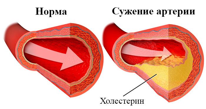 рисунок здоровой артерии и забитой холестерином
