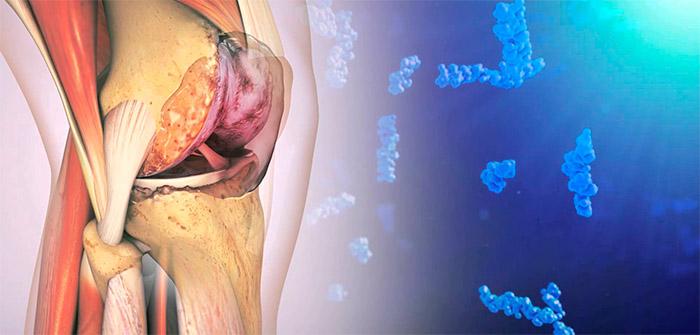 влияние статинов на суставы и мышцы