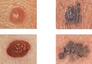 Что такое меланома и как ее диагностировать